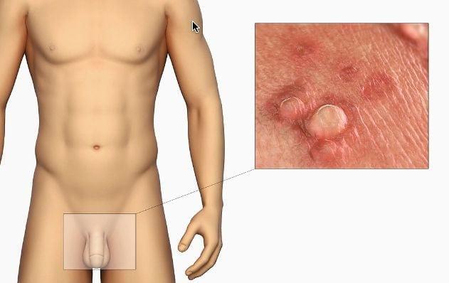 Cirujano Urologo en Mexico Dr Patricio Cruz Especialista en Verrugas Genitales v001