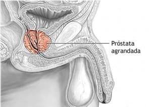 aumento de próstata después de la eyaculación