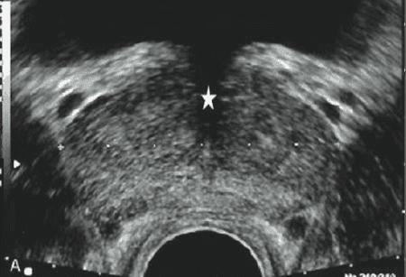 Cirujano Urologo en Mexico Especialista en Biopsia de Prostata