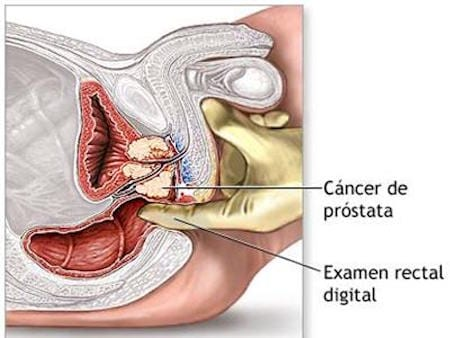Especialista-en-Urologia-Cancer-de-Prostata-Tacto-Rectal-Cirujano-Urologo-en-Mexico_v001