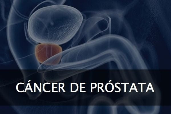 Especialista en Urologia y Cancer de Prostata en Mexico v001