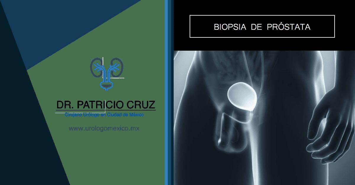 biopsia de próstata para retención urinaria aguda
