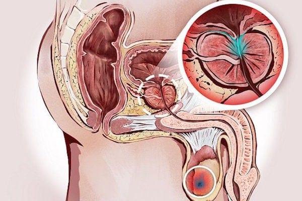 hace un mensaje de ayuda para la próstata con prostatitis
